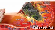 Processo infiammatorio da ferita
