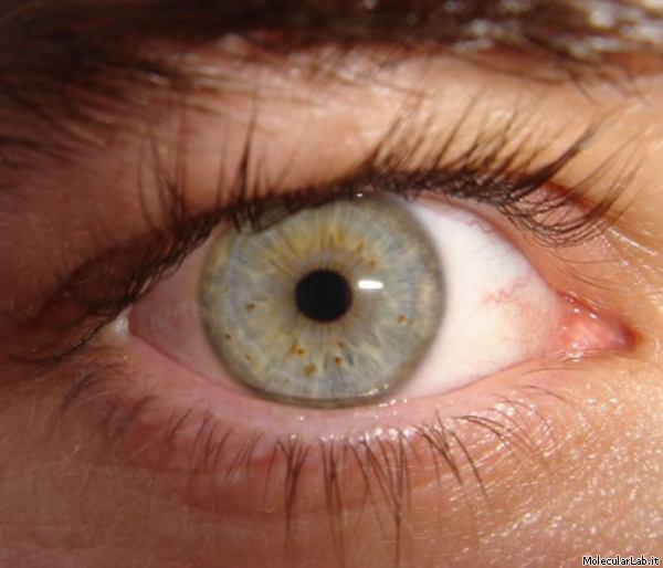 I segreti genetici del colore degli occhi - Colore degli occhi diversi ...