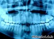 Radiografia raggi X di una bocca